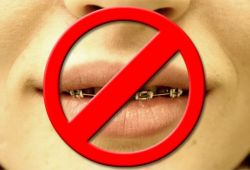 Tips on Kissing with Braces image